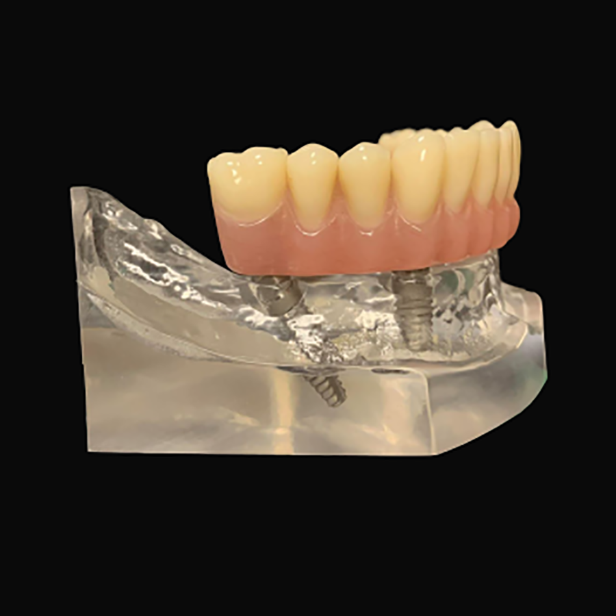 all in 4 dental implant